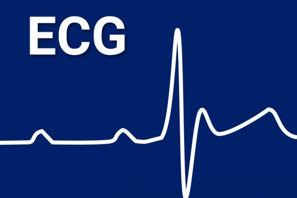 MENU 1 ECG
